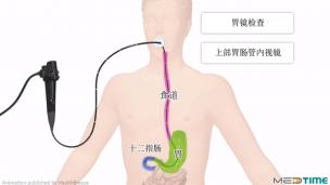 胃镜检查指南
